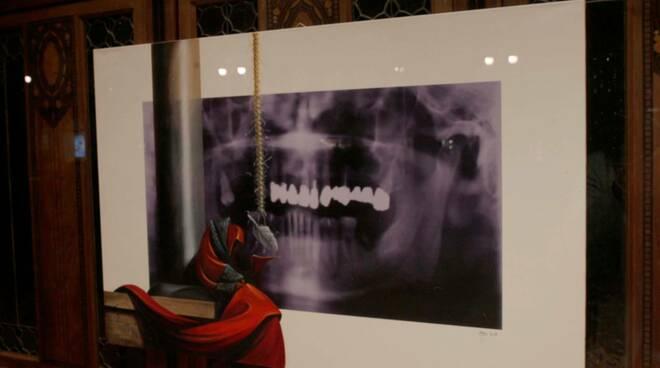 A bocca aperta